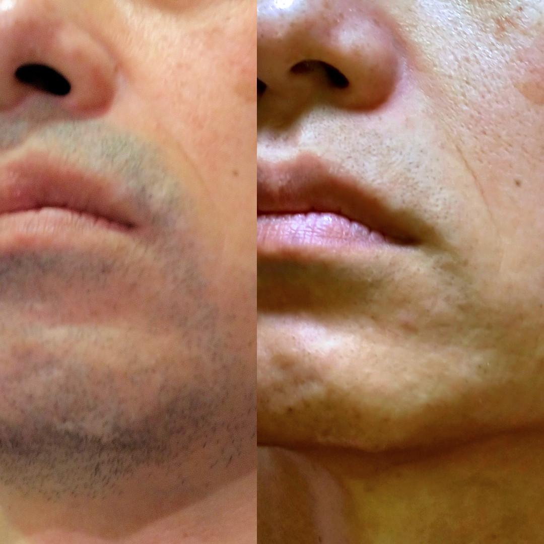 メンズ脱毛サロンでヒゲ脱毛をやり始める前と5回終了の比較写真