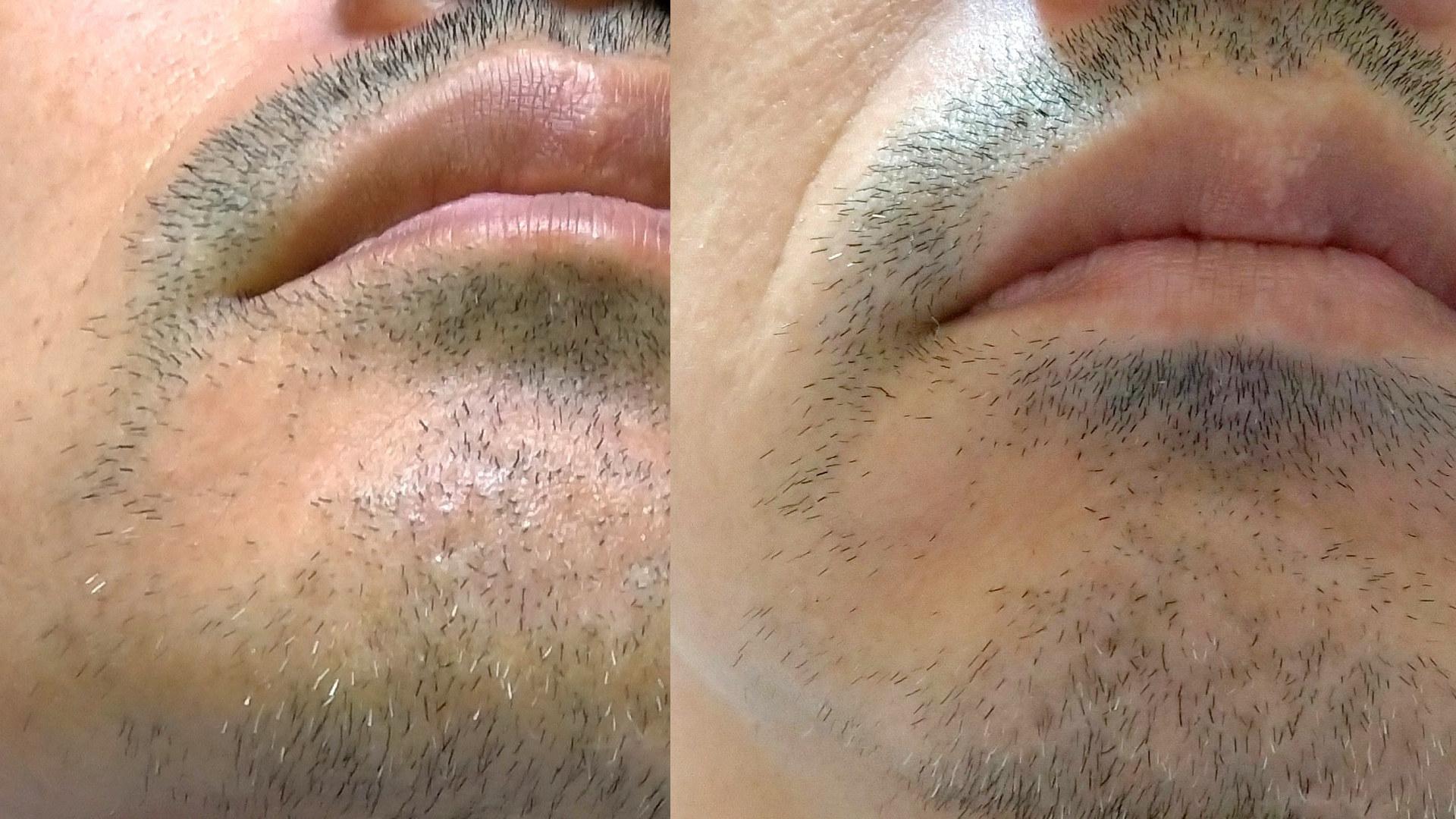 脱毛器 オーパスビューティー03の白髪ヒゲ脱毛チャレンジ 1回目直前と2回目直前の比較写真