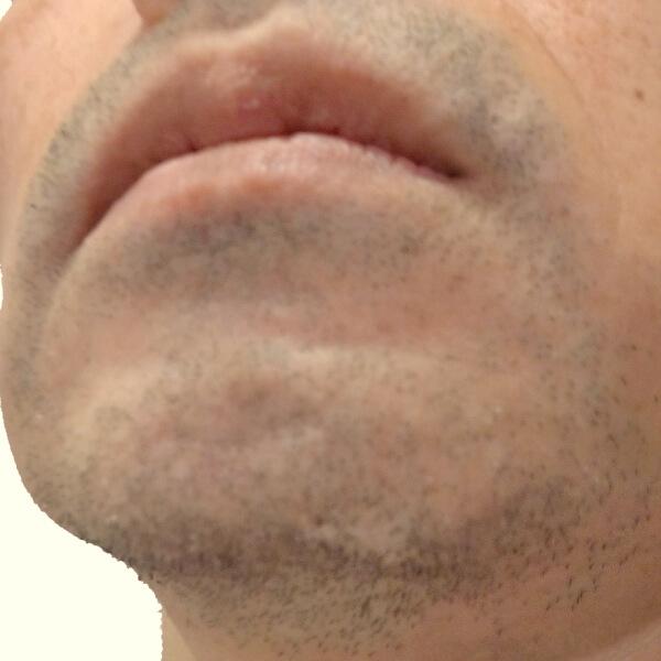 ヒゲ脱毛開始前 剃っても青髭状態