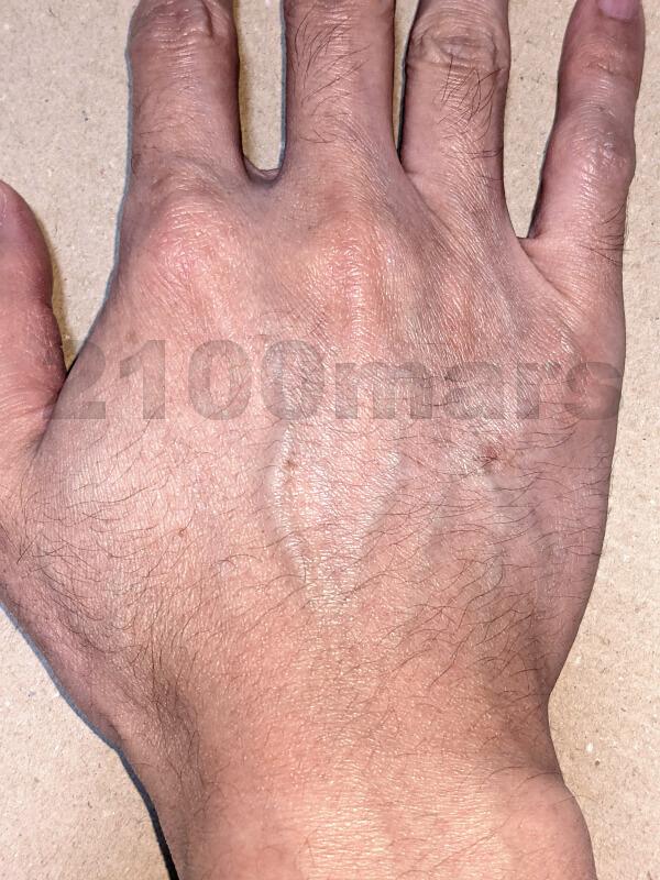 オーパスビューティー03で手 指 甲 腕 脱毛チャレンジ