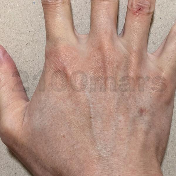Sarlisi脱毛器で手と腕の脱毛に挑戦 4回、2週が終了