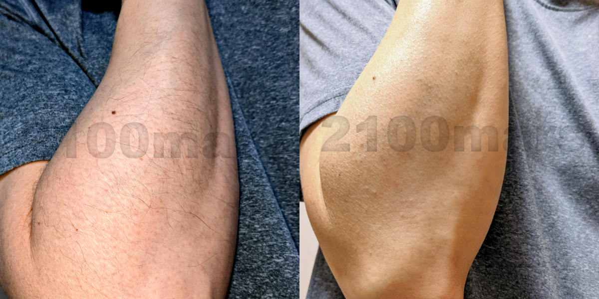 Sarlisi脱毛器とオーパスビューティー03で手と腕の脱毛比較 ビフォーアフター写真 右腕