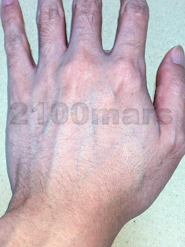 Sarlisi脱毛器で手の甲と指、腕の脱毛に挑戦