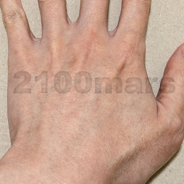 Sarlisi脱毛器とオーパスビューティー03で手と腕の脱毛比較 8回 8週目 左手